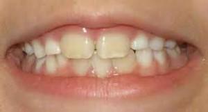 verkleurde tanden