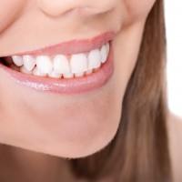 tanden bleken nadelen